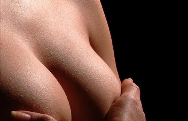 Neue Therapie gegen Brustkrebs